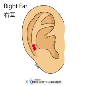 ear reflex point of Cervical Vertebrae on the right ear
