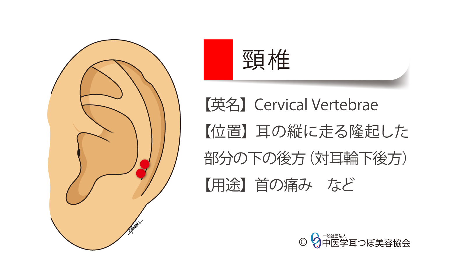 頸椎の耳つぼ ear reflex point of Cervical Vertebrae