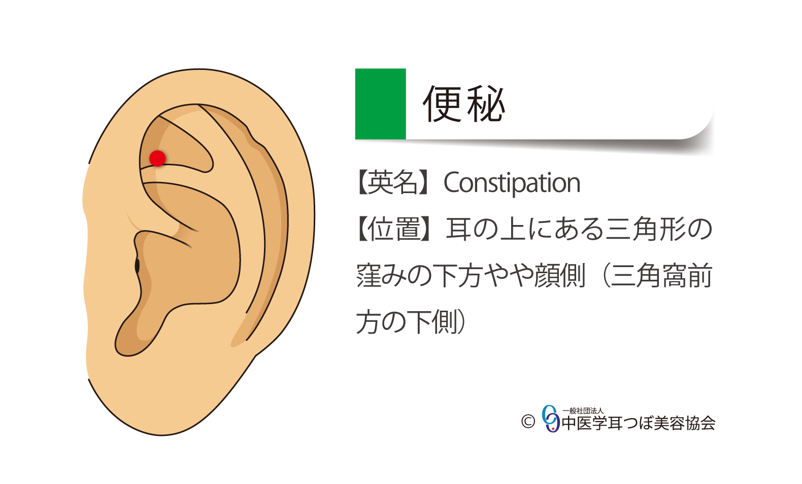 便秘、constipation