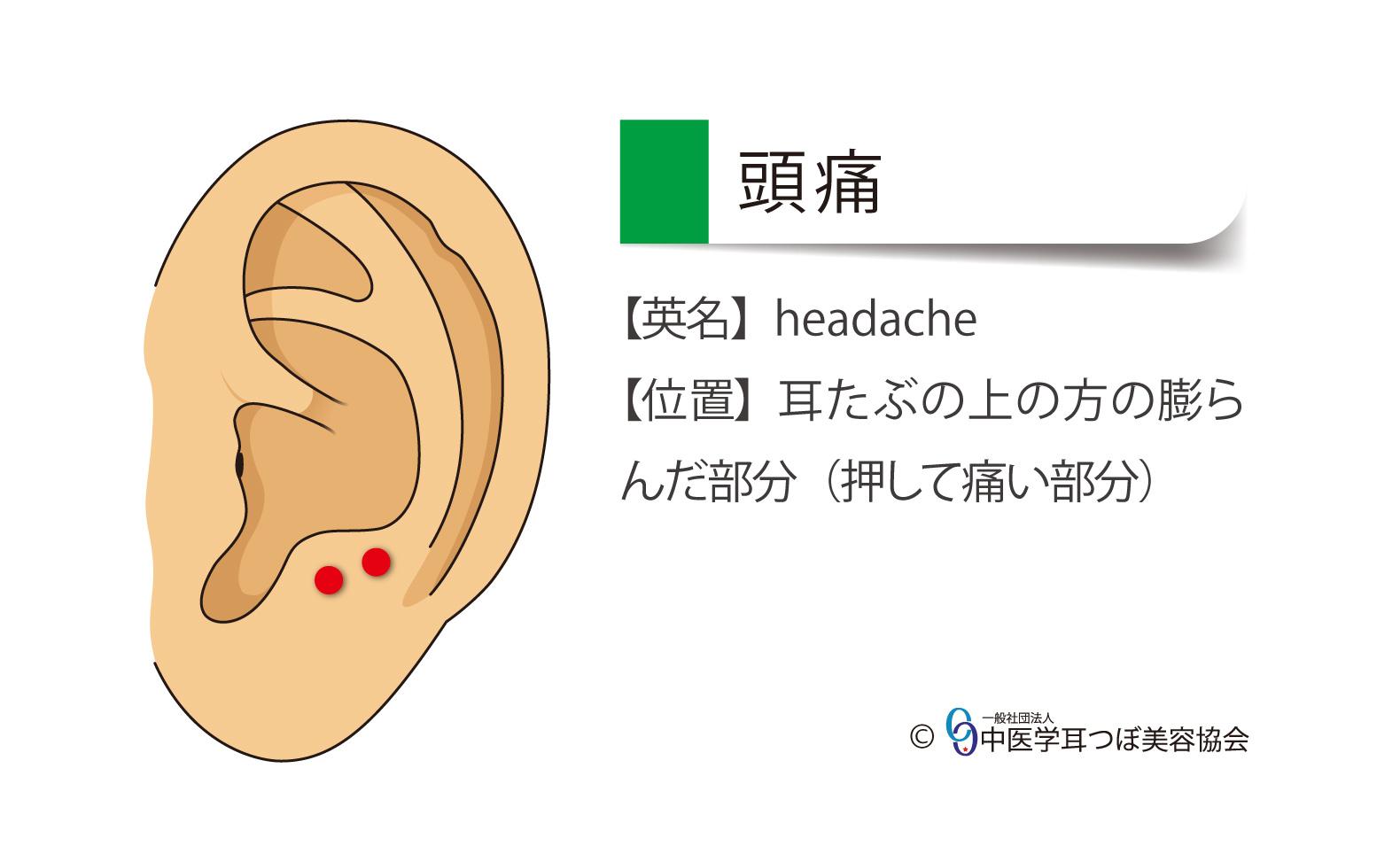 頭痛、headache