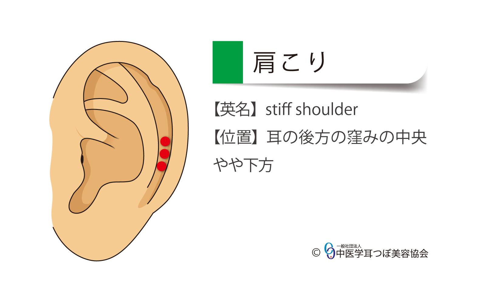 肩こり、stiff shoulder